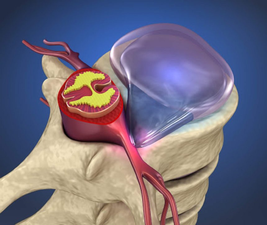 epidural injection for herniated disc reviews